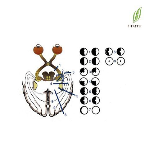 Ophthalmic pictures-FCP-10